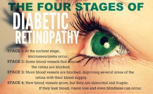 stages-of-diabetic-retinopathy